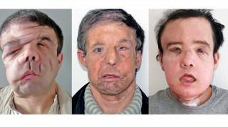 Ένας άνθρωπος, τρία πρόσωπα: Ο Ζερόμ Αμόν έγινε ο πρώτος άνθρωπος με δύο μεταμοσχεύσεις προσώπου