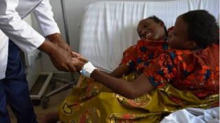 Τανζανία: Σιαμαία δίδυμα πέθαναν με 15 λεπτά διαφορά σε ηλικία 21 ετών
