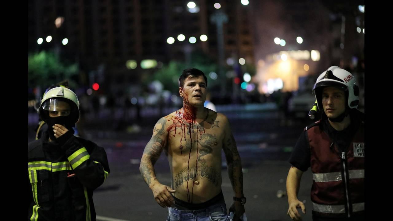 https://cdn.cnngreece.gr/media/news/2018/08/12/142405/photos/snapshot/2018-08-10T220019Z_107429253_RC17AB5C8300_RTRMADP_3_ROMANIA-PROTESTS.JPG