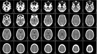 Σύστημα τεχνητής νοημοσύνης κάνει νευρολογικές διαγνώσεις σε χρόνο ρεκόρ