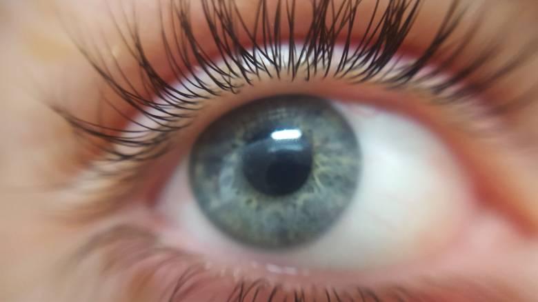 Βρέθηκε φακός επαφής στο μάτι της μετά από… 28 χρόνια