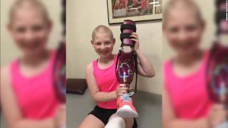 Επαναστατική επέμβαση δίνει ελπίδα σε 13χρονη που νίκησε τον καρκίνο
