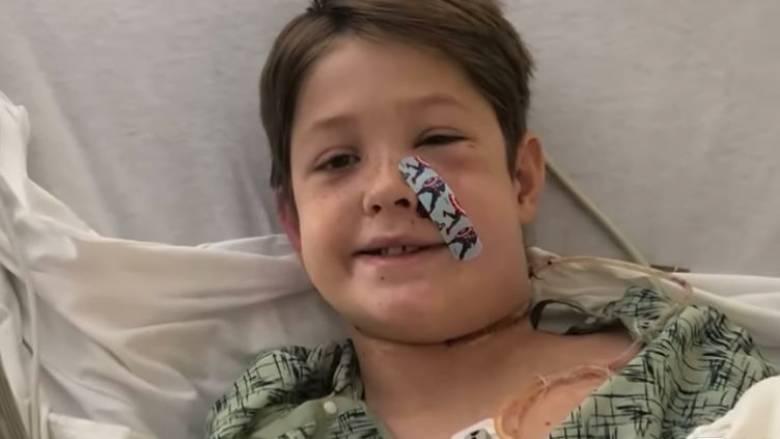 Σοκαριστικό ατύχημα για 10χρονο: Σούβλα διαπέρασε το κρανίο του