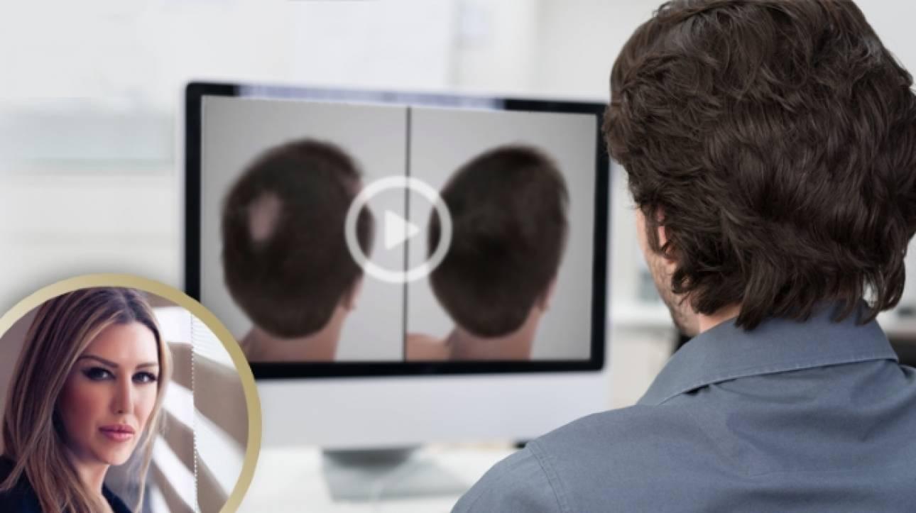 Μεταμόσχευση μαλλιών FUE: Η τεχνική που προτιμούν οι celebrities