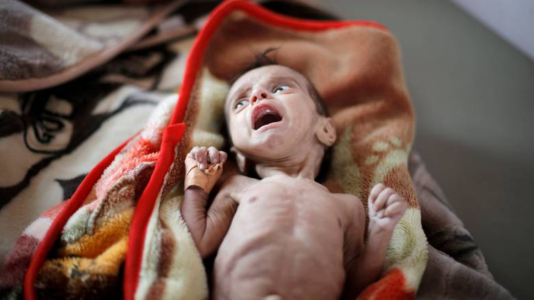 SOS από Υεμένη: Πάνω από 5 εκατομμύρια παιδιά στα όρια του λιμού