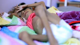 Υεμένη: Το κορίτσι-σύμβολο του λιμού πέθανε σε ηλικία 7 ετών