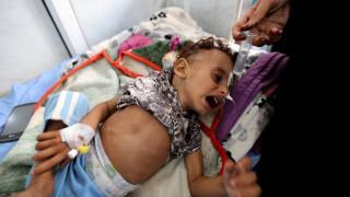 Υεμένη: 85.000 παιδιά κάτω των πέντε ετών νεκρά από ασιτία τα τελευταία τρία χρόνια