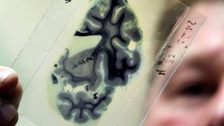 Τεστ αίματος ανιχνεύει το Αλτσχάιμερ πολλά χρόνια πριν την εκδήλωση των συμπτωμάτων