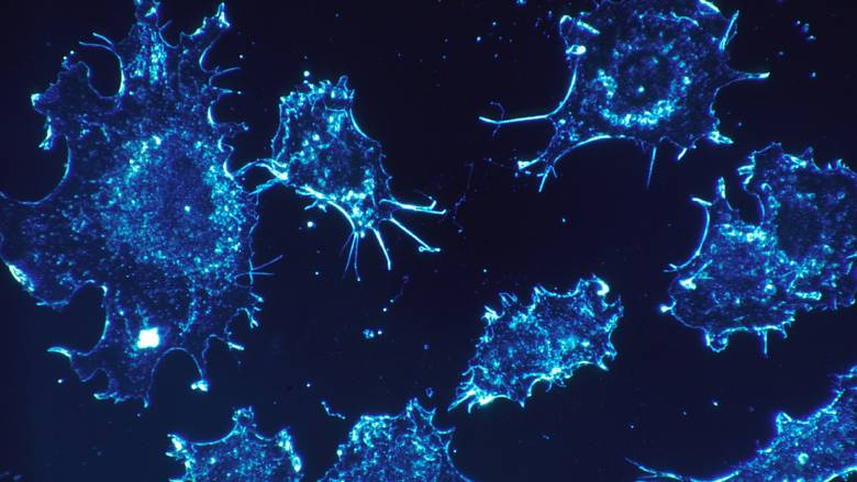 Ολοκληρωμένη θεραπεία για τον καρκίνο μέσα στο 2020 «υπόσχονται» επιστήμονες
