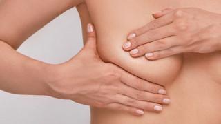 Ογκοπλαστική χειρουργική μαστού: Όσα πρέπει να γνωρίζετε