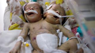 Σιαμαία βρέφη στην Υεμένη δεν μπορούν να διαχωριστούν λόγω πολέμου και έλλειψης εξοπλισμού
