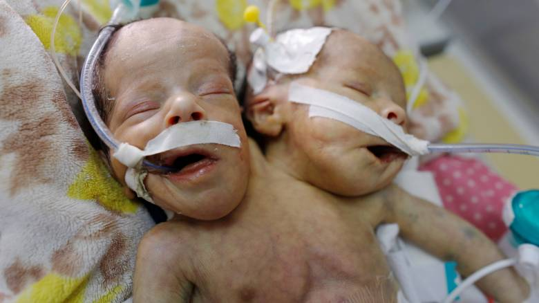 Υεμένη: Πέθαναν τα σιαμαία βρέφη - Αδυνατούσαν να τα εγχειρίσουν λόγω πολέμου
