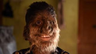 Συγκλονίζει το παιδί - «λυκάνθρωπος»: Με φωνάζουν πίθηκο και μου πετούν πέτρες