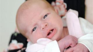 Νεογέννητο σοκάρει μητέρα και νοσοκόμες (pics)