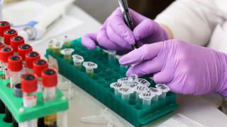 Βρετανία: Έγινε αλλεργική στο… σπέρμα του συζύγου της για να μείνει έγκυος