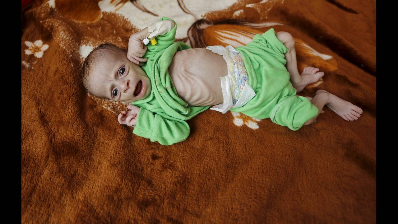https://cdn.cnngreece.gr/media/news/2019/03/21/169990/photos/snapshot/yemen6-reuters-Khaled-Abdullah-Ali-Al-Mahdi.jpg