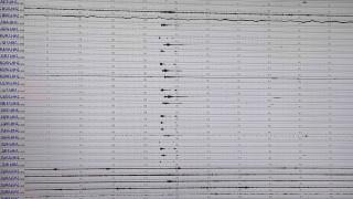 Σεισμός στο Γαλαξίδι: Καρέ – καρέ η στιγμή που «χτυπά» ο Εγκέλαδος