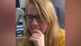 Θύμα κακοποίησης ξαναβρήκε τη φωνή του μέσω του τραγουδιού