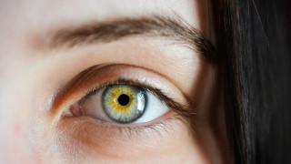 Πρωτοφανές ιατρικό περιστατικό: Μέλισσες ζούσαν μέσα στο μάτι 20χρονης