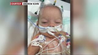 Οκτώ μηνών, επτά χειρουργεία: Το βρέφος που γεννήθηκε με μία σπάνια γενετική δυσμορφία