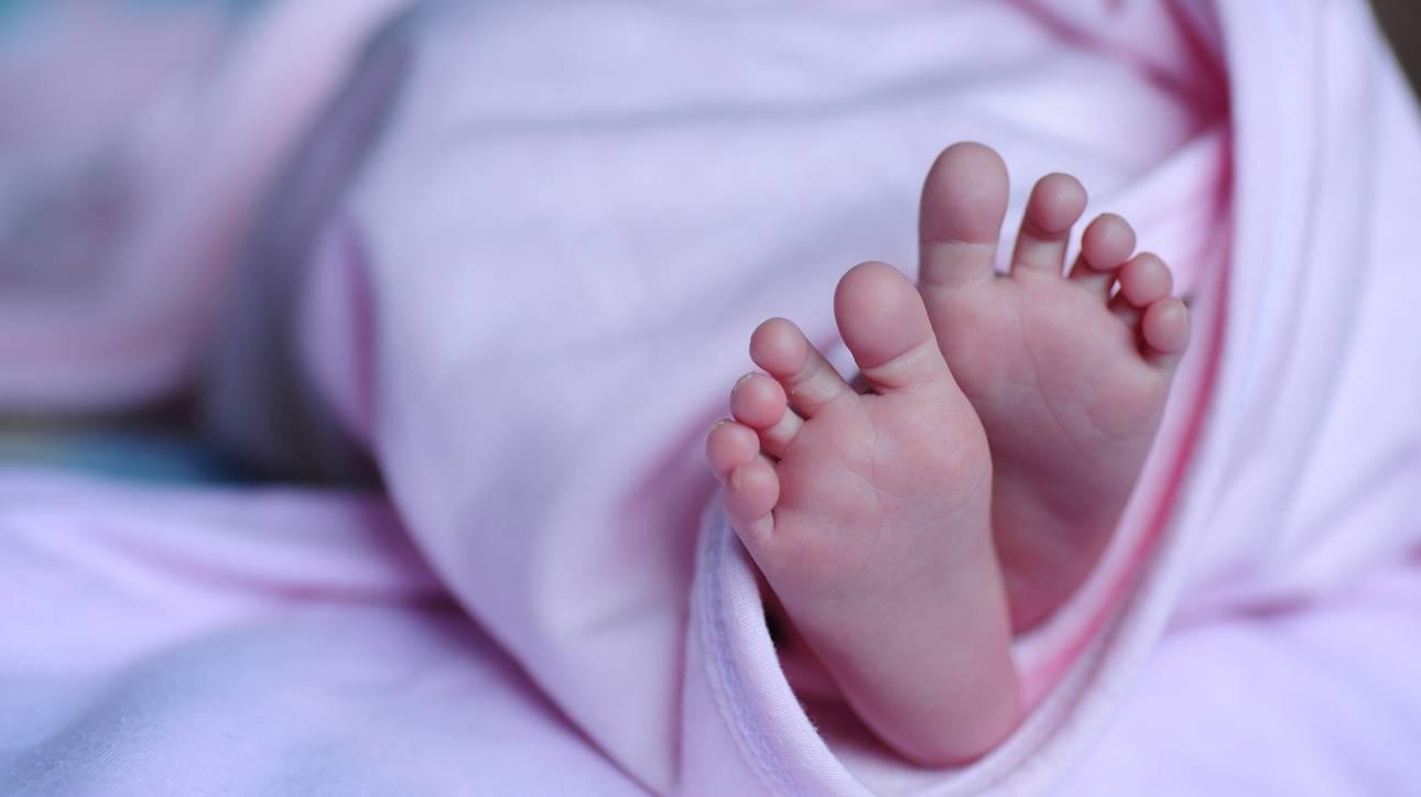 Μωρό στις ΗΠΑ γεννήθηκε χωρίς δέρμα