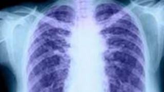 Επιστήμονες στη Γερμανία δημιούργησαν διαφανή ανθρώπινα όργανα