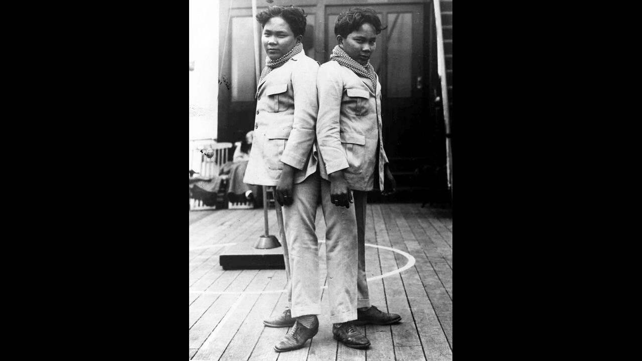 1928, Νέα Υόρκη.  Τα σιαμαία δίδυμα Λούτσιο και Σιμπλόκο Γκοντίνο, από το Σαμάρ των Φιλιππίνων φτάνουν στην Αμερική. Είναι 20 ετών.