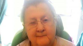 Αδιανόητο: Εισέβαλε στο σπίτι ηλικιωμένης, της έκοψε το χέρι και το πήρε μαζί του