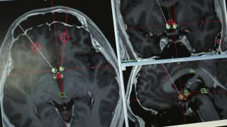 Πρωτοποριακή επέμβαση: Του εμφύτευσαν συσκευή στον εγκέφαλο για να κόψει τα ναρκωτικά