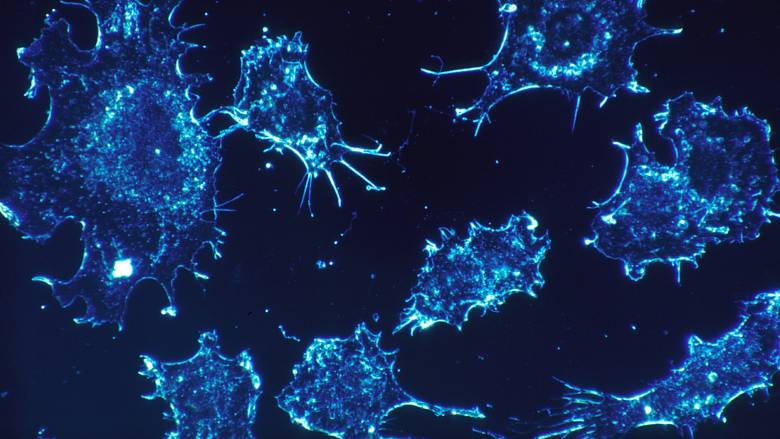 Καθηγητής Ινστιτούτου Έρευνας για τον Καρκίνο: Θα μπορούσε να «θεραπευτεί» μέσα στα επόμενα χρόνια