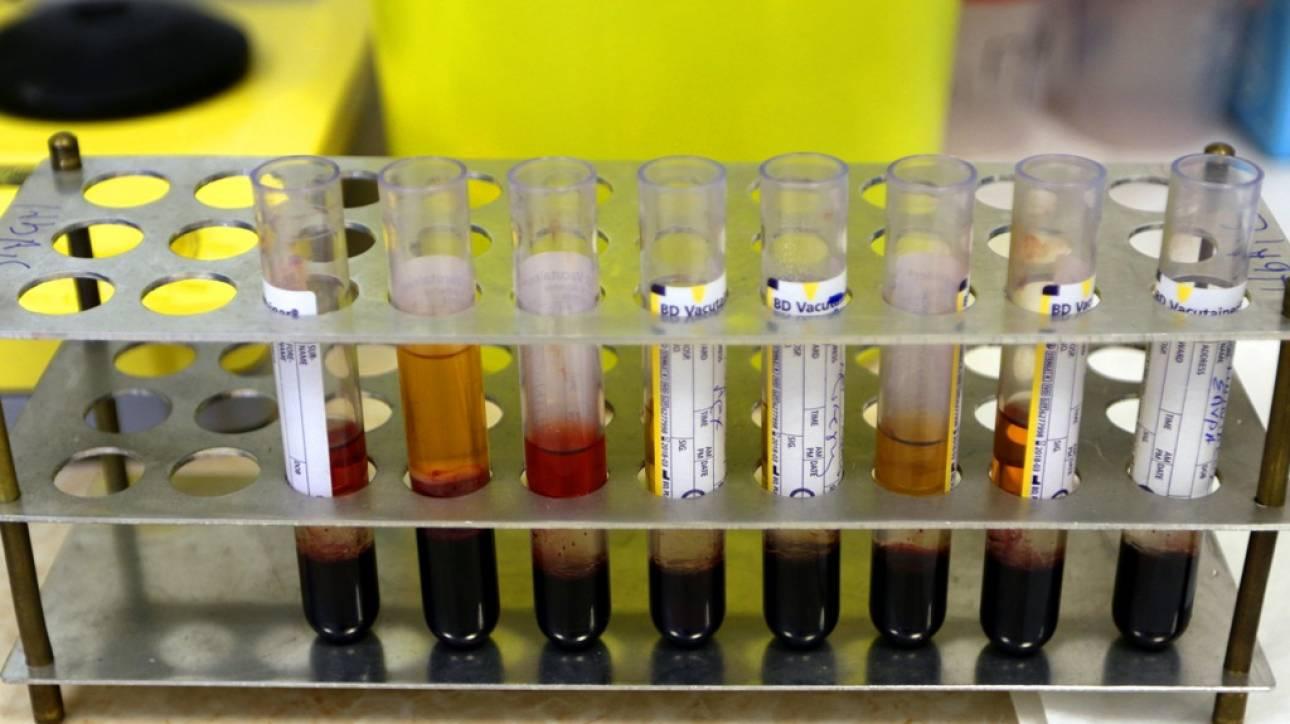 «Λουκέτο» στα διαγνωστικά εργαστήρια για 3 μέρες - Χωρίς εξετάσεις οι ασφαλισμένοι του ΕΟΠΥΥ