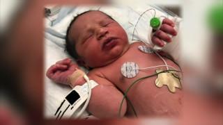 Άκουσαν κλάματα από το δάσος – Βρήκαν ένα νεογέννητο τυλιγμένο σε πλαστική σακούλα