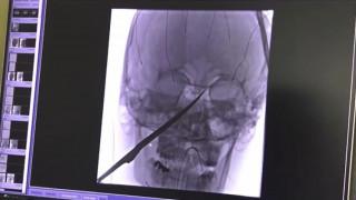 Ανατριχιαστικό ατύχημα: Μαχαίρι καρφώθηκε στο πρόσωπο 15χρονου