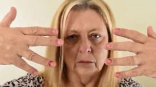 Εφιάλτης για 53χρονη: Της πέφτουν όλα τα νύχια ξανά και ξανά λόγω μυστηριώδους πάθησης