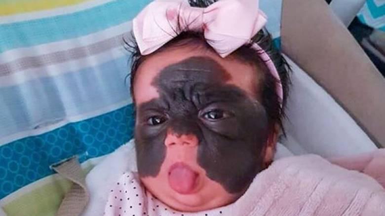 Μωρό – «Mπάτμαν»: Μόλις τεσσάρων μηνών και θύμα ασύλληπτου ρατσισμού