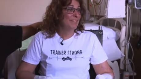 Την έγλειψε το κουτάβι της και οι γιατροί αναγκάστηκαν να την υποβάλλουν σε ακρωτηριασμό