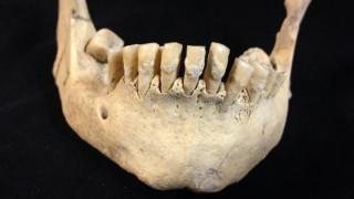 Ανακάλυψη... 6.000 ετών: Τι έδειξαν οι εξετάσεις στα δόντια προϊστορικών γεωργών