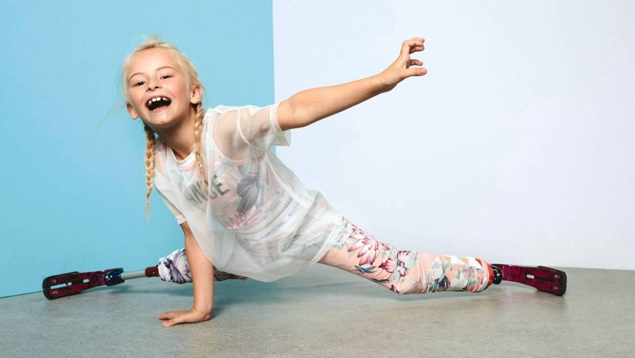 Το πραγματικό Next Top Model: Μια 9χρονη χωρίς πόδια κατακτά τις πασαρέλες