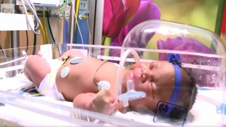 ΗΠΑ: Μωράκι γεννήθηκε στις 11/9, στις 9:11 και ζύγιζε 9,11 λίβρες!