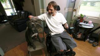 Συγκλονίζει ο άνδρας που έχασε χέρια και πόδια λόγω βακτηρίου που κόλλησε από σκύλο