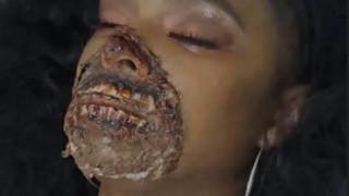 Μίσιγκαν: Τον απόλυτο πανικό έσπειρε γυναίκα βαμμένη σαν ζόμπι σε νοσοκομείο