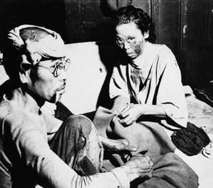 1945, Χιροσίμα. Ένας άντρας και μια γυναίκα, θύματα της ατομικής έκρηξης στη Χιροσίμα, σε αυτοσχέδιο νοσοκομείο στο κέντρο της πόλης.