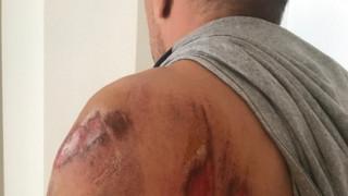 Αγρίνιο: Υπαστυνόμος δέχτηκε επίθεση από σκύλο