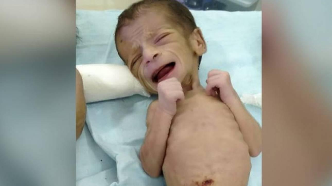 Ινδία: Ανάρρωσε πλήρως το νεογέννητο που είχε βρεθεί θαμμένο ζωντανό - Άφαντοι οι γονείς του