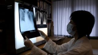 Μυστηριώδης πνευμονία προκαλεί ανησυχία στην Κίνα