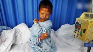 Παγκόσμιος σάλος: Νεκρή φοιτήτρια - Έμεινε 20 κιλά για να ζήσει τον αδελφό της