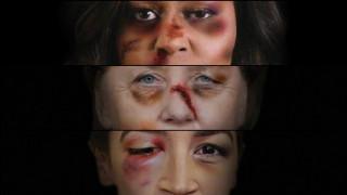Πρησμένα πρόσωπα και μώλωπες: Πορτρέτα ισχυρών γυναίκων γίνονται «γροθιά» ενάντια στη βία