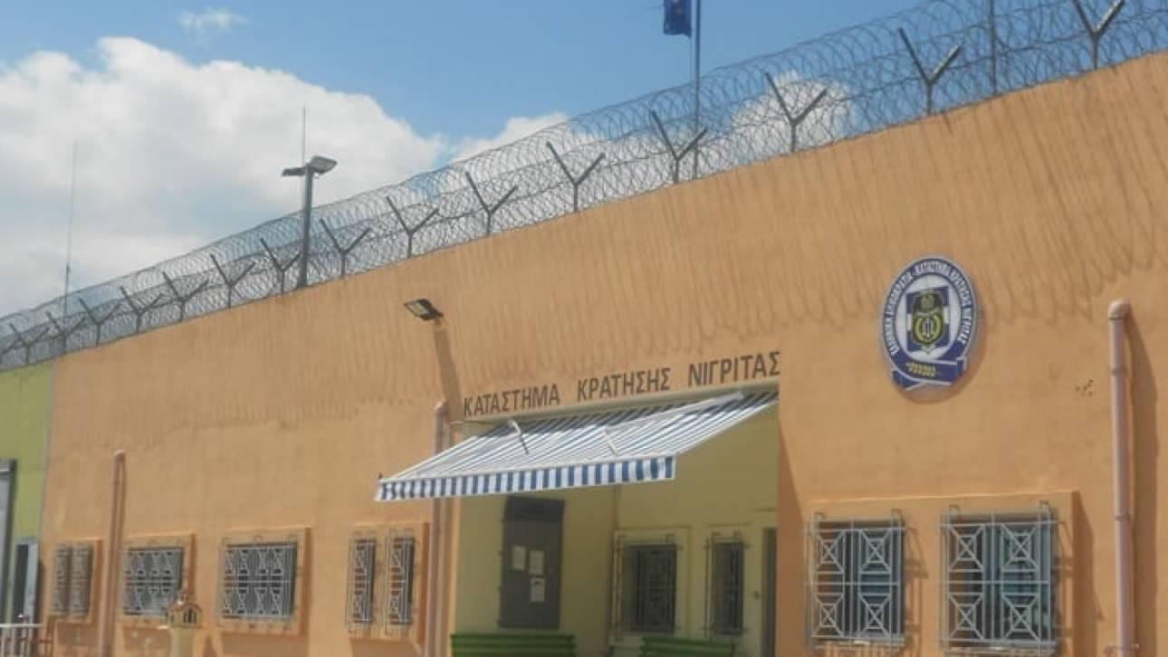 Σέρρες: Κρατούμενος έβγαλε τεράστιο όγκο στο κεφάλι - Η απάντηση του υπουργείου στις καταγγελίες