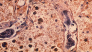 Ελπιδοφόρα ανακάλυψη: Εντοπίστηκε κύτταρο που «ενδέχεται να θεραπεύει όλους τους καρκίνoυς»