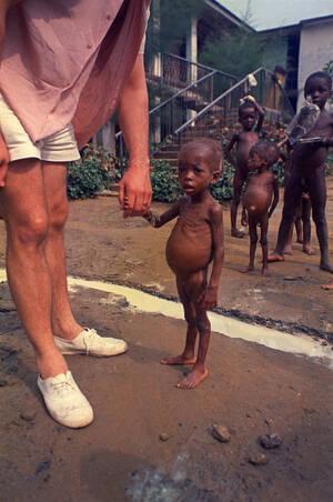 1970, Νιγηρία. Ένας Βρετανός κρατάει το χέρι ενός αποστεωμένου παιδιού, το οποίο μαζί με άλλα 600 παιδιά, πρόσφυγες από τη Μπιάφρα βρίσκεται σε αυτοσχέδιο νοσοκομείο στο Νίγηρα.